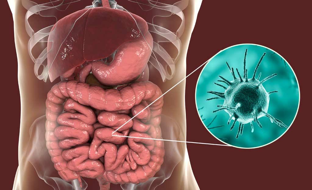 bacteria_virus_food_illness_safety